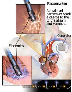 Life change first time Pacemaker on April 18, 2013