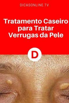 Tratamento para verrugas   Tratamento Caseiro para Tratar Verrugas da Pele   Elimine as verrugas da sua pele com esse tratamento - são apenas 3 ingredientes!!!