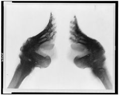 X-ray of feet that had been bound! Amazing what woman would do for beauty!