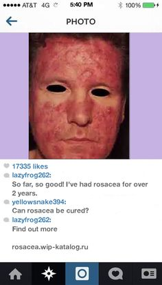 Best Makeup To Cover Rosacea 111307 - Rosacea. You have nothing to lose! Visit Site Now.