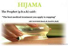 AL-HIJAMA Cupping-01