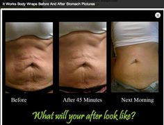 Wanna loose those extra inches, tighten and tone that loose skin from weight loss or pregnancy and fade your stretch marks!!Get yours today http://diannawraps.myitworks.com or www.facebook.com/DiannaWrapsYouSkinny #itworks #ultimatebodyapplicator #stretchmarks #skinny #skinnywrap #thin #cellulite #45mins #tightentoneandfirm #weightloss #detox #fitness #exercise #mommy #money #tummy #sexy #fat #beforeandafter #diet #nutrition #scars #makeover #men #women #bodywrap #loseweight #health#beauty