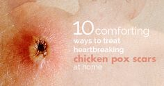 At one point in your life, chicken pox will knock at your door and say hello. It is best if you get it when you are younger, since your skin rejuvenates faster(. Face In Hole, Chicken Pox, Viral Infection, When You Were Young, Cold Sore, Home Remedies, Skin Care, Treats, Household Tips