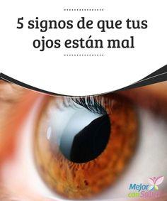 5 signos de que tus ojos están mal  Los ojos son órganos primordiales para el desarrollo del día a día de cada persona.