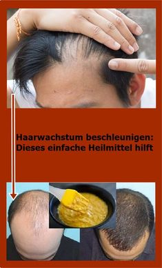 Accelerate hair growth: this simple remedy helps Haarwachstum beschleunigen: Dieses einfache Heilmittel hilft Castor Oil For Hair, Hair Oil, 4c Hair, Afro Hair Care, Diy Hair Care, Natural Hair Growth Remedies, Hair Loss Cure, Hair Growth Oil, Hair Health