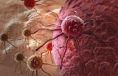 SEGUROS PRIZA te dice. El cáncer es una de las principales causas de muerte a nivel mundial, en el 2008 provocó aproximadamente el 13 por ciento de las muertes en el mundo, es decir 7.6 millones de defunciones. La OMS sostiene que es posible reducir y controlar el cáncer aplicando estrategias destinadas a la prevención de la enfermedad así como a la detección temprana.