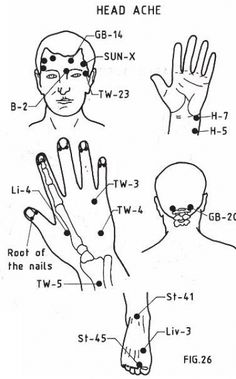 Headache and Migrane Relief with Acupressure Therapy