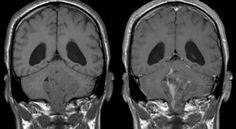 Skupina vědců uznala, že konopí ve skutečnosti zabíjí rakovinové buňky