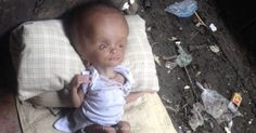 Woman Saves Starving And Abandoned Infant, Wait Until You See What She Looks Like Now!