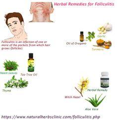 Folliculitis Natural Treatment