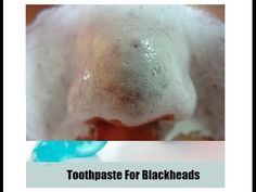 Toothpaste Pack To Clean Blackheads: Do It Yourself - YouTube