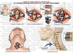 1 Level - anterior cervical discectomy and fusion - cervical artificial disc replacement - Medical Art Works Cervical Disc, Radiculopathy, Neck Surgery, Medical Art