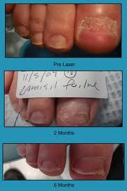 When treating a toenail fungal infection, are the risks of the oral medication Lamisil worth it? Read more about the risks and side effects of Lamisil here: http://www.totalfootwellness.com/is_lamisil_worth_the_risk.php