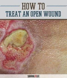 How to Treat an Open Wound by Survival Life at http://survivallife.com/2015/07/16/how-to-treat-an-open-wound/