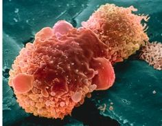 Tumour cells, such as these from a lung cancer, are riddled with genetic mutations, but many of those are caused by the cancer rather than being involved in causing the disease.