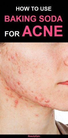 Cystic acne has been a problem for many people since it is caused by cyst; this is why it is also called as cystic acne. It is a much severe and acute condition of acne; cystic acne is nothing but some lumps of inflammation. Black Spots On Face, Brown Spots On Skin, Skin Spots, Dark Spots, Brown Skin, Acne Treatment At Home, Cystic Acne Treatment, Acne Treatments, Natural Treatments