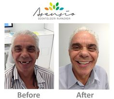 Dental Implant abroad. All on four case. Asensio. Dentist Spain. Before and After