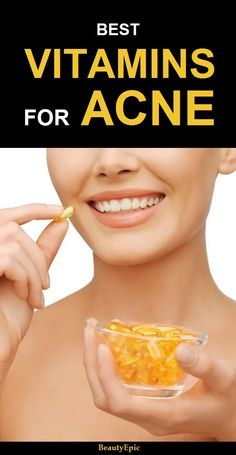 Natural Acne Remedies Top 5 Vitamins to Prevent Acne - If you have a hormonal imbalance, nutrients deficiency or toxic accumulation in our body then it causes acne. Below are some of the vitamins for acne Pimple Marks, Acne And Pimples, Acne Skin, Acne Scars, Oily Skin, Sensitive Skin, Skin Oil, Cellulite, Mac Cosmetics
