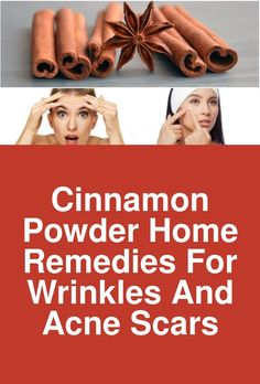 Cinnamon Powder home remedies for wrinkles and acne scars Cinnamon has numerous benefits to the skin. Try these natural remedies at home to get rid of acne, acne scar, and wrinkles. Home Remedies For Wrinkles, Cinnamon Powder, How To Get Rid Of Acne, Acne Scars, Stretch Marks, Skin Care Tips, Natural Remedies, Skincare, Skin Tips