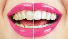 hydrogen peroxide teeth whitening unwanted effects - Is Teeth Whitening Safe? Teeth Whitening Remedies, Natural Teeth Whitening, Whitening Kit, Dr Oz, Hydrogen Peroxide Teeth, Cosmetic Dentistry, Perfect Smile, Dental Care, White Teeth