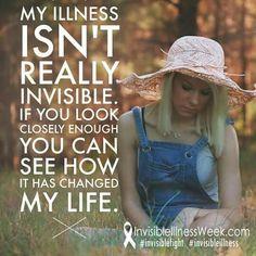My illness isn't really invisible.