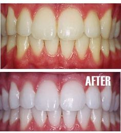 Toothpaste  1 tsp baking soda  1 tsp hydrogen peroxide  ½  water  Sealable container  Take 1 part toothpaste, 1 part baking soda, 1 part hydrogen peroxide and mix in a seal-able container.  Mix and put on toothbrush.  Add water to brush head and brush teeth!  Use 1-2 times a week, and only once a month after you've achieved results you want.
