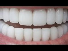 Teeth Whitening Remedies, Natural Teeth Whitening, Whitening Kit, Make Teeth Whiter, Affordable Dental, Root Canal Treatment, Dental Cosmetics, Beauty Youtubers, Dental Crowns