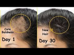 Regrow New HAIR in 30 Days & Cure Baldness | Onion Juice & Garlic for Thick Hair Growth | Thin Hair