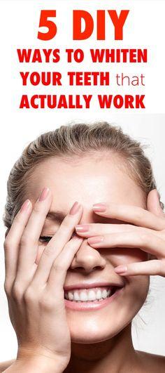 5 DIY Ways to Whiten Your Teeth that Actually Work