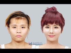 Eng Sub, Korea plastic surgery before and after, Let me in Season 4 WOW