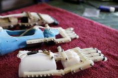 """""""3-D Printer Brings Dexterity To Children With No Fingers"""": NPR. Pic caption: One version of the Robohand includes 3-D printed parts assembled with metal hardware. New parts can be easily """"printed"""" as the child grows."""