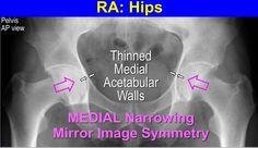 rheumatoid arthritis; hips - medial joint space loss - symmetrical
