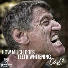 Interested in teeth whitening? Not sure how much teeth whitening costs? Take a look!