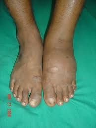 Diabetes leads to swollen feet which is where so many lose the foot to amputation...See here Holistic Nutrition, Natural Home Remedies, Diabetes, Canning, Medical Care, Low Carb, Tasty, Healthy Recipes, Foods