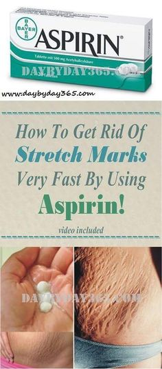 How to get rid of Stretch Marks very fast by using Aspirin! (VIDEO) - The Health Bible Reduce Stretch Marks, Stretch Mark Removal, How To Get Rid Of Stretch Marks, Stretch Marks On Legs, Natural Cures, Natural Health, Natural Skin, Cold Medication, Belleza Diy