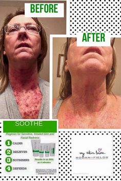 Amazing results after pre-Cancer treatment left her skin raw & sensitive!    Rodan + Fields is changing skin, changing lives! Please let me help make it happen for you or your loved one! KZugg.myrandf.com