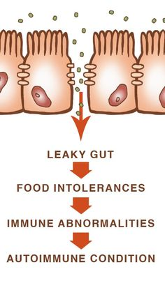 Leaky-Gut Progression & how to heal it (really good read if you have an autoimmune disease or an issue such as eczema, psoriasis, food allergy/sensitivity, etc.)