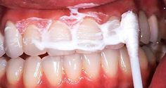 Caring for your oral health is very important. Not caring for your teeth can cause bad breath, toothaches, inflammation and