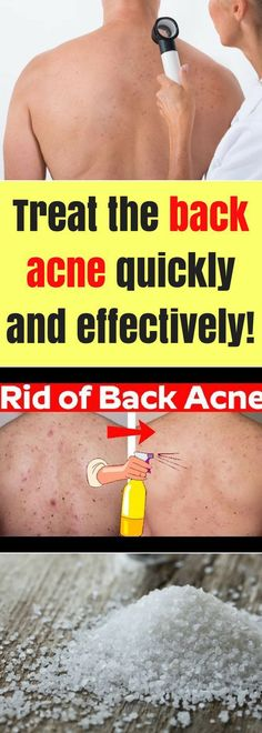 Treat The Back Acne Quickly & Effectively!!! - All What You Need Is Here