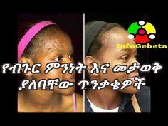 Ethiopia: How to treat acne?| የብጉር ምንነት እና መታወቅ ያለባቸው ጥንቃቄዎች -  CLICK HERE for the Acne No More program #acne #acnecure #acnetips #acnecare በአማርኛ የተዘጋጀ ከላይ ታጥቦ እና አስውቦ ፈጥሮን አንዳንድ ውበታችንን ከሚያበላሹ ጥቃቅን ነገሮች አንዱ ብጉር ነው።ስለዚህ የሰውነታችንን ቆዳ በተለይ ፊታችንን ቆዳ እንዳልነ