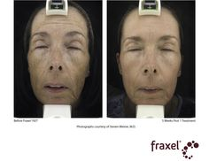 What Are Ipl Photofacial Treatments Google Search Ipl