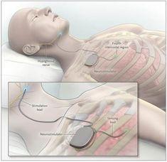 New device can reduce sleep apnea episodes by 70 percent Pitt-UPMC study shows What Causes Sleep Apnea, Causes Of Sleep Apnea, Home Remedies For Snoring, Sleep Apnea Remedies, Trying To Sleep, How To Get Sleep, Sleep Apnea Devices, Circadian Rhythm Sleep Disorder, Sleep Apnea