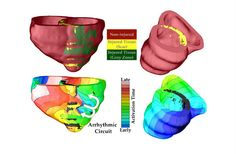 This virtual 3D heart test accurately predicts which patients are at risk of sudden death.