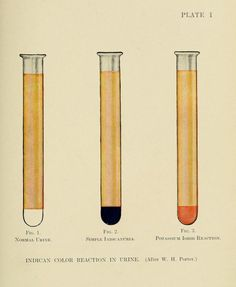 Plate I. Indican color reaction in urine. Urology : the diseases of the urinary tract in men and women. 1912.