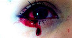 Marnie-Rae Harvey è una ragazza che lacrima sangue. Purtroppo perde sangue anche da altre parti del corpo ma i medici non sanno che malattia sia.