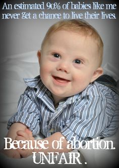 1a6837b2e46a9b24c40b53ebe2867050 baby live choose life the down syndrome creed my beautiful & perfect daughter! quotes