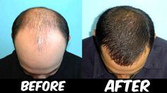 How To Stop Hair Fall For Men, Cure Hair Loss, Cure Baldness
