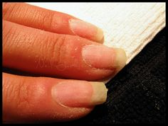 How to properly remove acrylic nails - Wonder if it works!