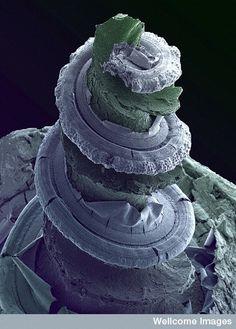 Cochlea of the inner ear