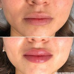 Alllllabout those lips ? of Restylane Kysse . Book a free consultation today with special aesthetics nurse. Btx Filler Chemical Peels and vitamin treatments available .Kidwelly Swansea and port Talbot . Dermal Fillers Lips, Facial Fillers, Botox Fillers, Lip Fillers, Braut Make Up Rosa, Lip Job, Relleno Facial, Botox Lips, Restylane Lips